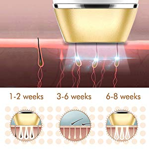 IPL hair removal stages
